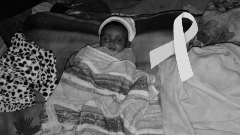 Hallan niña de tres meses sin vida por desnutrición severa en Constanza