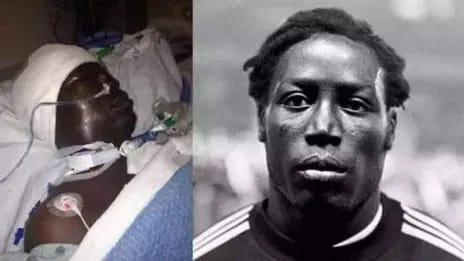 Muere futbolista francés tras durar 39 años en coma por error en anestesia